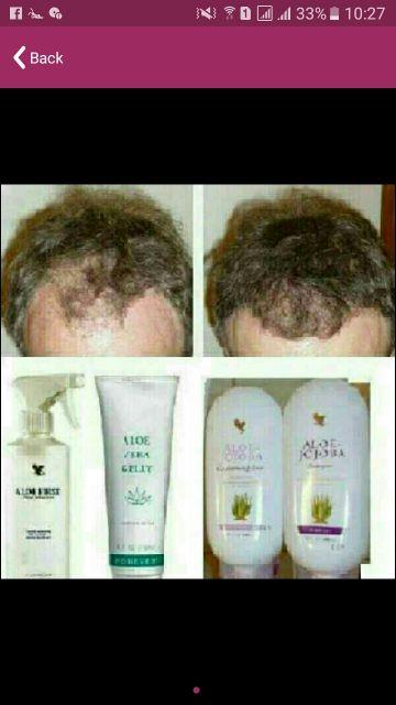 انبات الشعر فعال