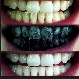 مبيض الاسنان